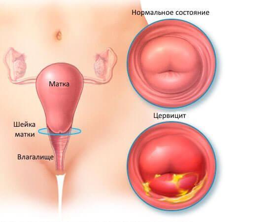 Основные признаки цервикоза шейки матки – причины возникновения и лечение