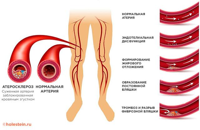УЗИ артерий нижних конечностей: виды обследования, назначение, подготовка, процедура и  возможные болезни