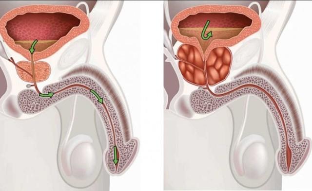 Объем и размеры простаты: норма по возрастам у мужчин на УЗИ