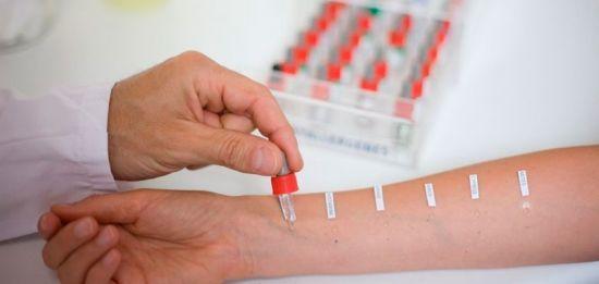 Анализ крови при аллергии: виды, расшифровка и дополнительные исследования