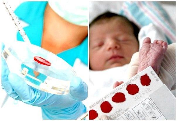 Скрининг новорожденных: виды, особенности обследования и расшифровка результатов