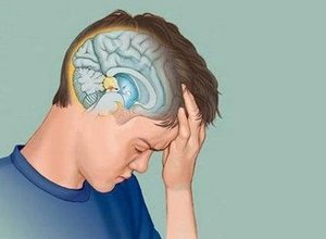 Киста головного мозга - что это такое: виды, симптомы и прогноз