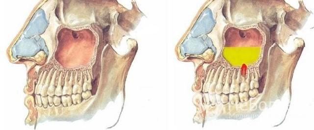 Признаки кисты правой верхнечелюстной пазухи и методы лечения новообразования