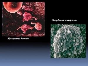 Уреаплазмоз - виды уреаплазмы, признаки инфекции, методы диагностики, а также особенности лечения заболевания