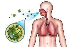 Золотистый стафилококк в кишечнике: симптомы, диагностика и осложнения