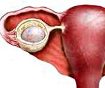 Киста яичника: основные виды и методика лечения новообразования
