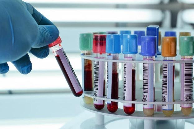 Суть анализа ЭДС: расшифровка, норма и отклонение от нормы показателей анализа на сифилис