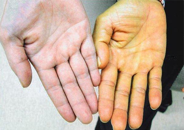 Билирубин в крови: диагностика, причины повышения, возможные заболевания и способы снижения пигмента