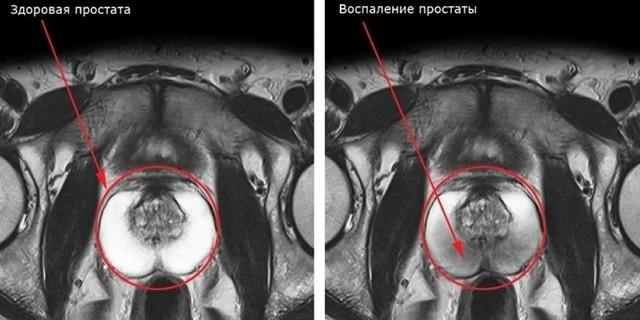 Нормальный размер предстательной железы у мужчин и причины отклонения от нормы