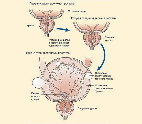 Гемоспермия - розовая сперма у мужчин: причины и лечение