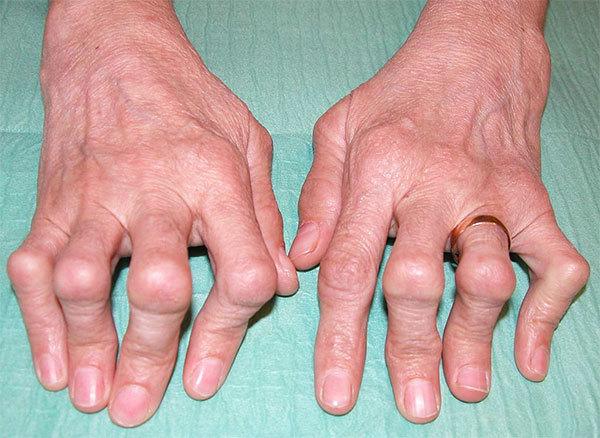 Ревматоидный артрит: причины возникновения, анализы, лечение и профилактика заболевания