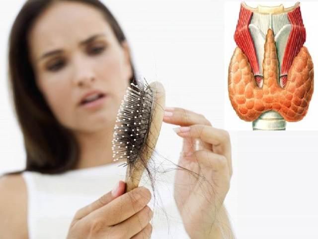 Дефицит железа, заболевания щитовидной железы и выпадение волос
