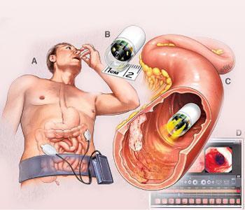 Проверка кишечника: эффективные методы и возможные заболевания
