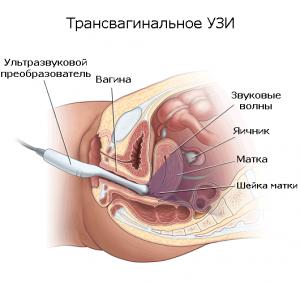 УЗИ трансвагинальное: подготовка и процедура обследования, возможные результаты