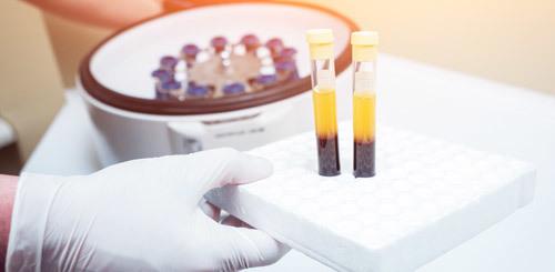 Белок в крови - диагностика, норма показателя, причины повышения и возможные заболевания